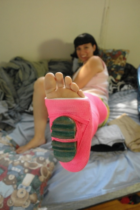 woman sexy leg cast