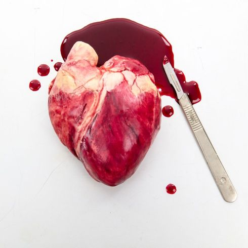 1.Heart with scalpel -chocolate